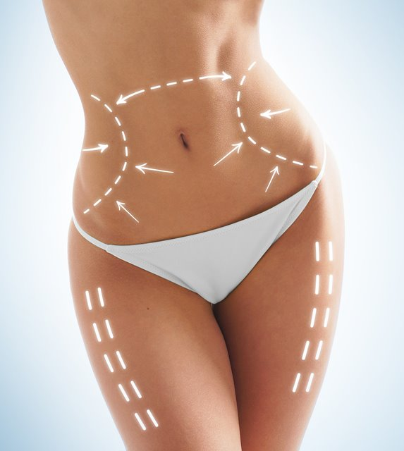 LIPOSUCTION İLE YAĞLARA KALICI VEDA